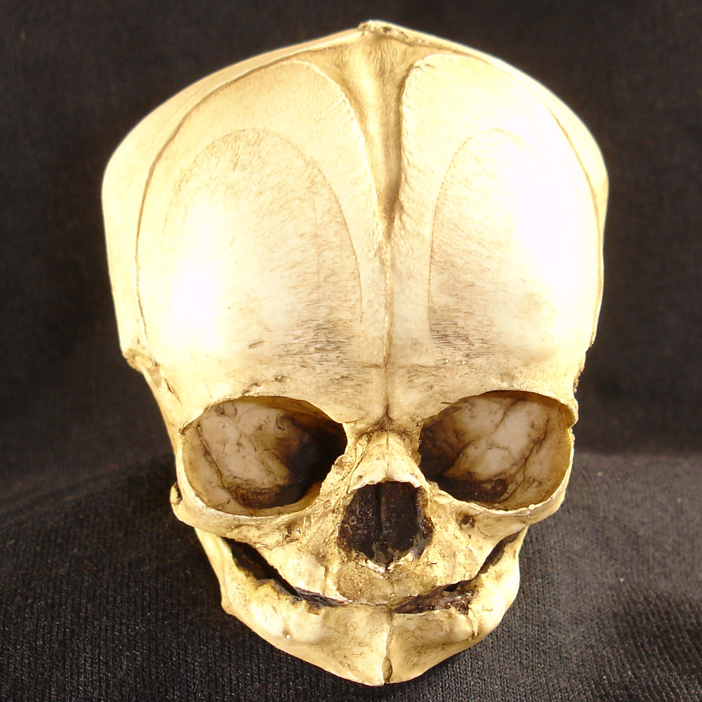 fetal skull Bone clones offers a range of fetal skulls, from 13 week fetus to a full term fetus this would be a valuable addition to any program studying skeletal fetal development.